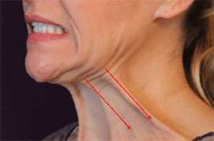 Platysma Tone Double Chin Exercises