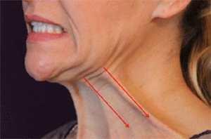 Platysma Tone Double Chin Exercises